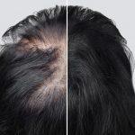 Virkning av Pelo Baum sjampo/ balsam